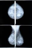 早期胸部肿瘤Ⅹ射线测定法 免版税库存图片