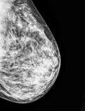 早期胸部肿瘤X射线测定法,乳房X-射线  库存照片