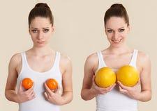 说明乳房扩大手术的概念性图象 库存图片