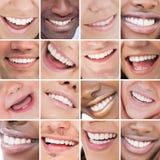 明亮的白色微笑拼贴画  库存照片