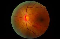 显微镜的眼睛 免版税库存照片