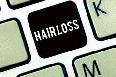 显示掉头发的文本标志 huanalysis头发概念性照片损失从头或成为秃头任何身体部位的 免版税库存图片