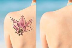 显示激光纹身花刺在肩膀的人撤除治疗 免版税库存图片