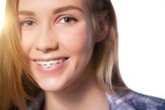 显示牙齿括号的青少年的女孩画象 免版税库存图片