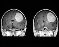 显示肿瘤的脑子mri 免版税库存照片