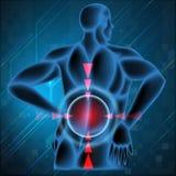 显示背部疼痛的人的脊椎 免版税库存图片