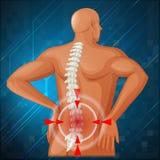 显示背部疼痛的脊椎图 库存照片
