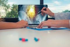 显示臀部和痛苦的X-射线医生在膝上型计算机的脊椎对妇女患者 在书桌上的药片 免版税库存照片