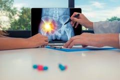 显示臀部的X-射线充满左痛苦的医生在膝上型计算机对妇女患者 在书桌上的药片 免版税库存图片