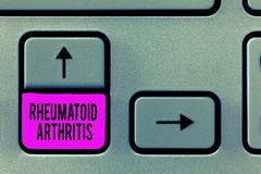 显示风湿性关节炎的文字笔记 陈列可能导致关节痛和的自体免疫病的企业照片 免版税库存照片