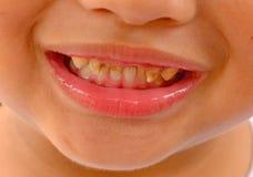 显示龋蛀牙的孩子患者开放嘴 免版税库存照片