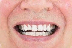 显示他的牙的老人 免版税库存照片