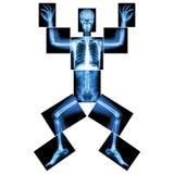 曲线锯的人的X-射线(整体:顶头头骨面孔脖子脊椎肩膀胳膊肘关节前臂腕子手手指胸口胸部心脏 库存照片