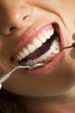 更正在牙的设备 免版税库存照片