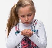 有一个受伤的手指的小女孩 库存照片
