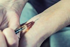 有一个注射器的少女上瘾者在她的手上 免版税图库摄影