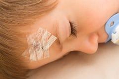 有一临时拼凑的一个孩子在被缝的前额 免版税库存照片