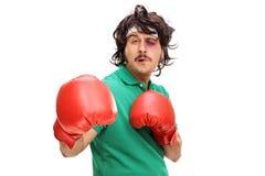 有一只黑眼睛的拳击手 免版税库存图片