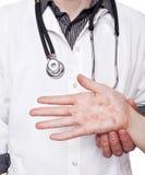 有严厉湿疹的皮肤病学家审查的手 免版税库存照片