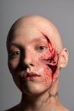 有为操作准备的砍得恨深的伤口的妇女 库存照片