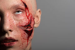 有为操作准备的砍得恨深的伤口的妇女 免版税库存图片