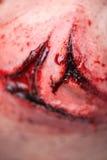 有为操作准备的砍得恨深的伤口的妇女 库存图片