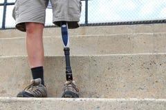 有义肢腿的常设人,细节 免版税图库摄影