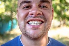 有切削的牙的年轻人 库存照片