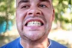 有切削的牙的年轻人 免版税库存照片