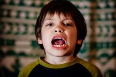 有参差不齐的牙的男孩 免版税库存照片