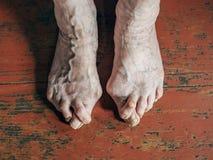 有囊炎hallux在地板上的valgus问题的脚 免版税图库摄影
