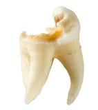 有在白色背景隔绝的龋的被拔的牙 免版税库存图片
