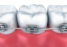 有在白色隔绝的括号的牙 医疗上准确例证 免版税库存图片