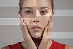 有多斑点的皮肤和愈合的软的皮肤的妇女 库存照片