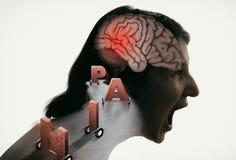 顶头痛苦的概念 库存例证