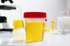 有尿样的容器在桌上的分析的 免版税库存图片