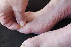 有干性皮肤和趾甲真菌的人 库存照片