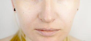 有干燥嘴唇的年轻美丽的白肤金发的妇女 免版税库存图片