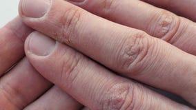 有干燥破裂的皮肤的手指 有皮肤学问题的手 股票视频