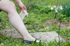 有应用压缩绷带的静脉曲张的妇女 库存照片
