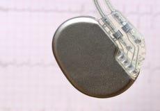 有心脏起搏器的心动电描记器 免版税图库摄影