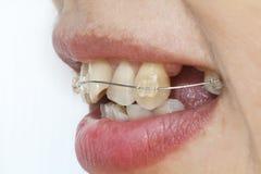 有括号的歪牙 免版税库存图片