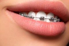 有括号的美丽的白色牙 牙齿保护照片 与ortodontic辅助部件的妇女微笑 畸齿矫正术治疗 免版税图库摄影