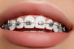 有括号的美丽的白色牙 牙齿保护照片 与ortodontic辅助部件的妇女微笑 畸齿矫正术治疗 库存图片