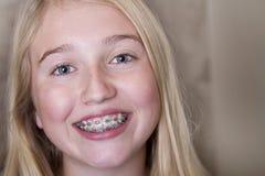 有括号的青少年的女孩在她的牙 库存照片