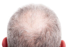有掉头发问题的人头皮 免版税库存图片