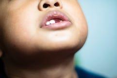 有断牙的亚裔男孩 免版税库存图片
