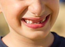 有无牙的微笑的孩子 免版税库存照片