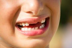 有无牙的微笑的孩子 库存照片