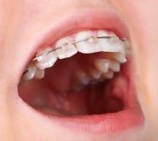 有正牙学托架的牙 免版税库存图片